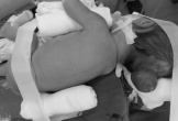 Quảng Bình: Phẫu thuật thành công cho trẻ 5 ngày tuổi bị thoát vị màng não