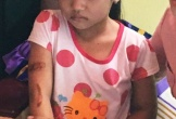 Bé gái nghi bị cha, mẹ kế dí sắt nung đỏ đã bỏ học và