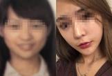 Cô gái bị lỡ chuyến bay vì khuôn mặt khác lạ sau phẫu thuật thẩm mỹ