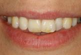 3 cách làm trắng răng bạn phải biết