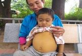 Cậu bé bụng phình to như chiếc trống vì căn bệnh teo mật bẩm sinh