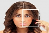 4 cách tự nhiên để trị nám da