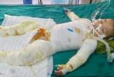 Gia cảnh éo le, bé trai 21 tháng tuổi rơi vào nồi nước sôi cần được giúp đỡ