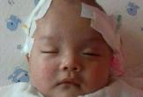 Lời cầu cứu của người mẹ bất hạnh có con trai bị não úng thủy