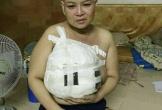 Người phụ nữ mang khối u khổng lồ trên ngực khiến cộng động mạng xót xa