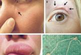 Ký sinh trùng di chuyển trên mặt người phụ nữ Nga