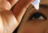Cảnh giác với 5 vấn đề lạ ở mắt