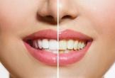 Răng trắng cực nhanh chỉ với 1 loại rau