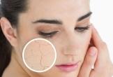 Bí quyết giúp bạn cấp ẩm cho da trong mùa đông