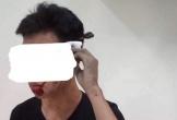 Hỗn chiến ngoài trường, nam sinh bị chìa khóa xe đâm thẳng vào đầu