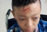 Làm rõ vụ nam sinh lớp 8 đánh bạn phải nhập viện ở Vĩnh Long
