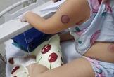 """Quảng Bình: Gà mổ vào chân, bé gái bị nhiễm khuẩn """"ăn thịt người"""""""