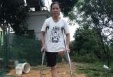Mất chân do tai nạn lao động, người phụ nữ cầu cứu trong nước mắt