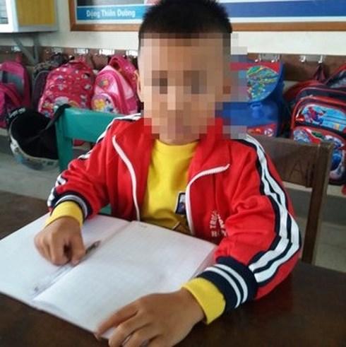 học sinh bị cô giáo tát nhập viện